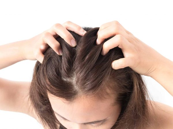 71537849 – closeup woman hand itchy scalp, hair care concept